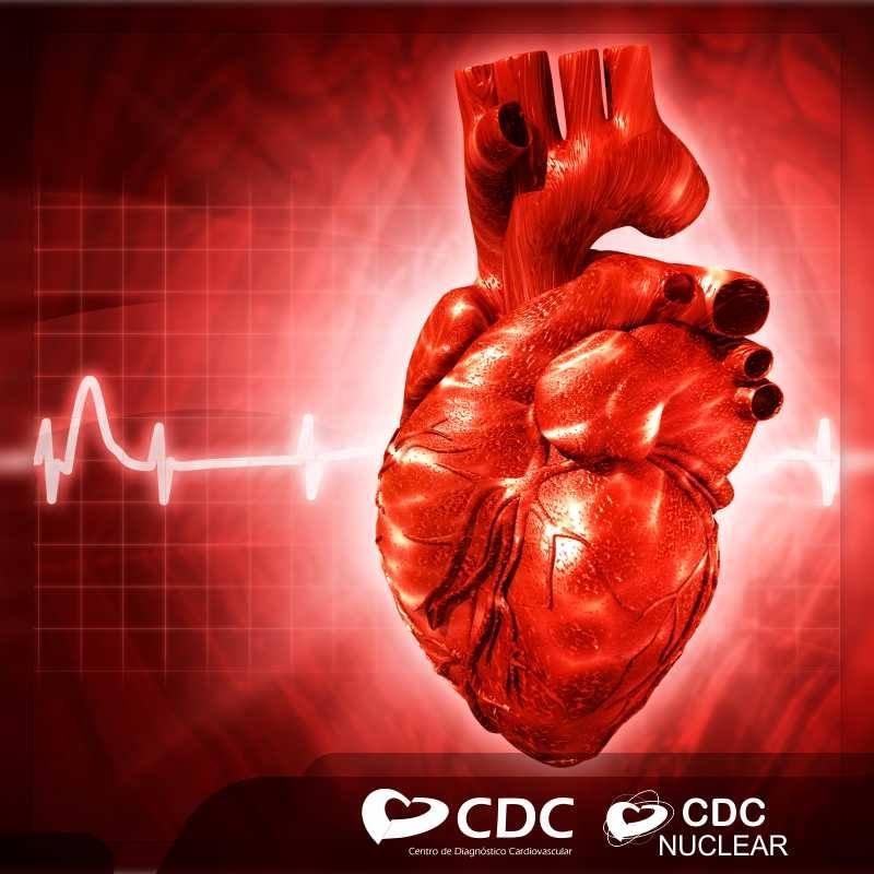 exames-clinica-cdc-cardiovascular-campo-grande-ms